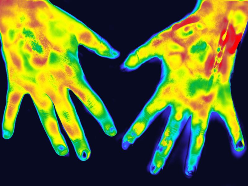 Ręce w podczerwieni